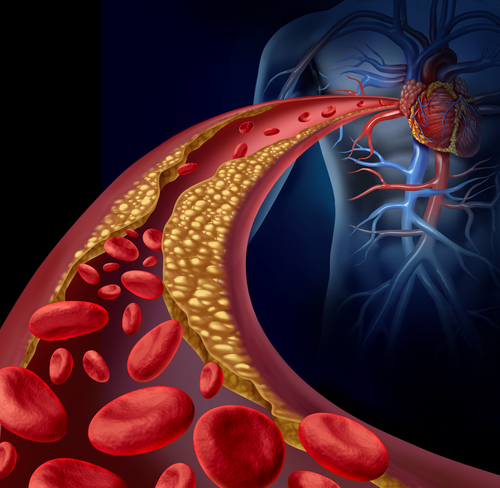 how to get rid of fat in blood vessels