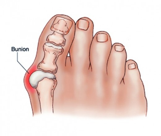 get-rid-of-bunions-naturally-with-this-simple-but-powerful-remedy