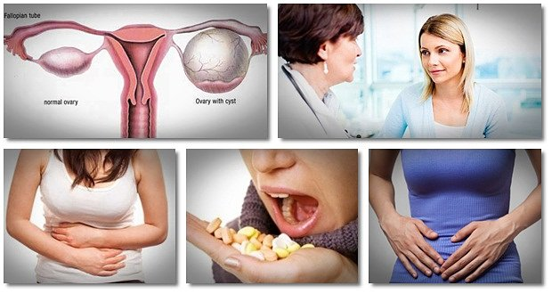 How To Treat Ovarian Cysts Naturally And What Are The Symptoms