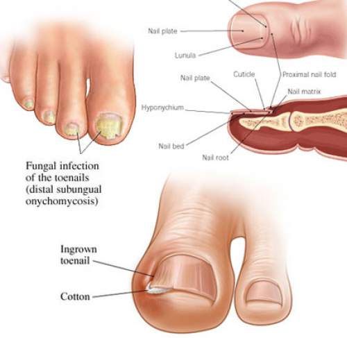 How To Get Rid Of Toenail Fungus Using Just 3 Simple Home Remedies