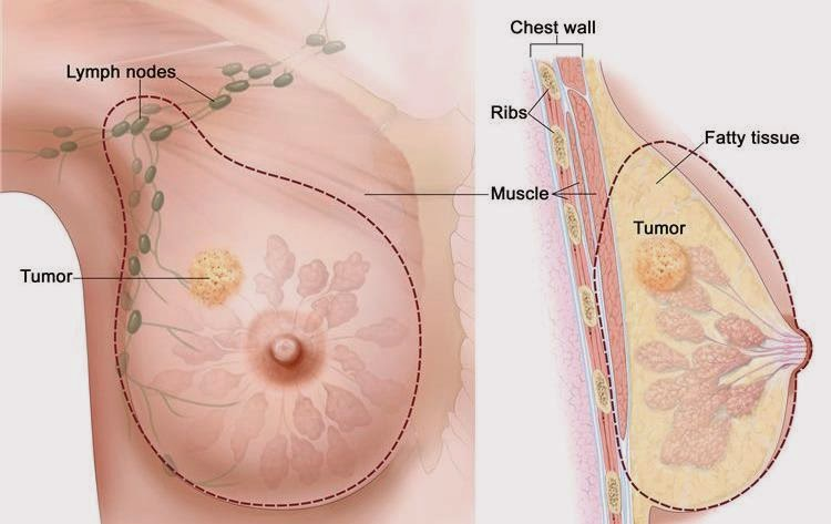 scientists-discover-soy-actually-accelerates-breast-cancer-rather-than-preventing-it