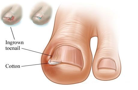 How To Treat An Ingrown Toenail At Home Health And