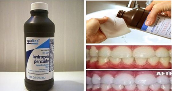 24 incredible facts why hydrogen peroxide should be in every home 24 incredible facts why hydrogen peroxide should be solutioingenieria Images