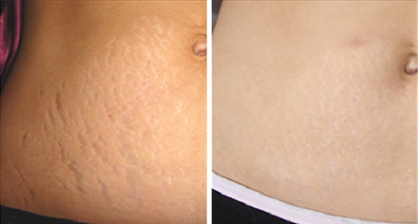 how-to-get-rid-of-stretch-marks-naturally