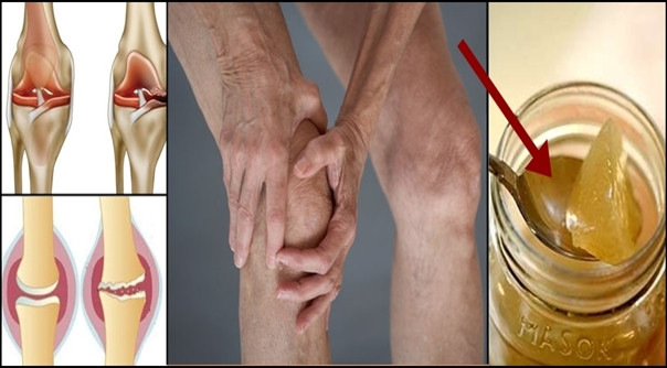 the-root-of-the-knee-pain-is-a-damage-of-the-cartilage-so-this-is-how-to-naturally-regenerate-it