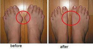 for-this-you-do-not-need-surgery-get-rid-of-bunions-naturally-by-using-only-one-ingredient