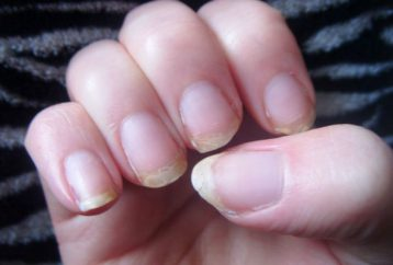 are-your-nails-always-splitting-or-breaking-heres-what-your-body-is-trying-to-tell-you1