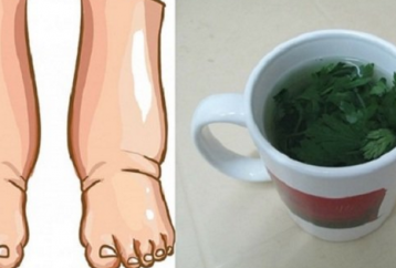 3-natural-remedies-swollen-ankles-feet1