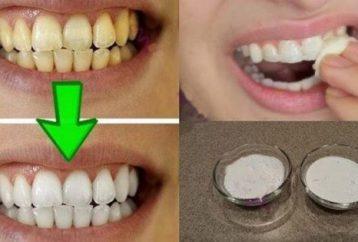 guaranteed-whiten-yellow-teeth-less-2-minutes