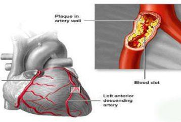 save-heart-kidneys-brain-clean-arteries-3-ingredients
