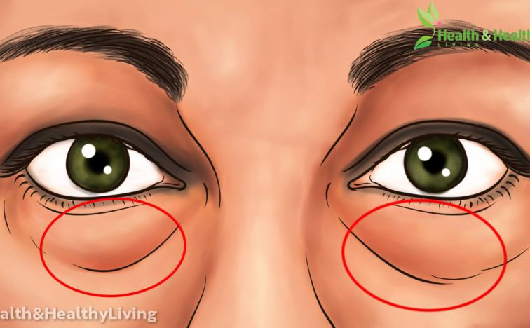 learn-best-natural-treatments-remove-dark-circles-bags-eyes-super-express-remedies1