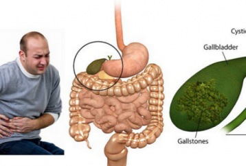 powerful-chinese-secret-remove-gallstones-just-7-days