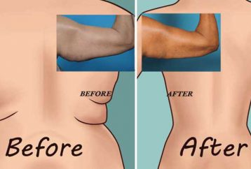 try-6-worlds-easiest-exercises-back-fat-underarm-flab
