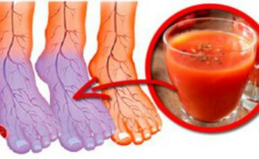 suffer-poor-circulation-feet-hands-always-cold-solution