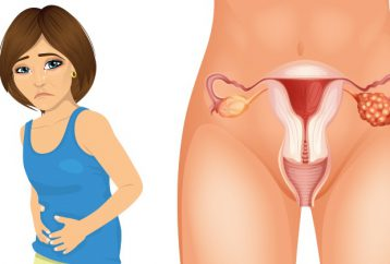 4-early-symptoms-ovarian-cancer-every-woman-needs-know