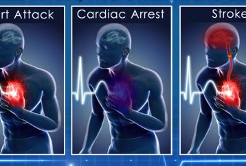 learn-key-differences-among-cardiac-arrest-heart-attack-stroke