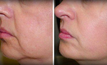no-wrinkles-sagging-skin-face-2-ingredients