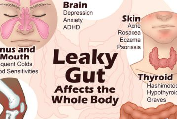 10-symptoms-gut-overloaded-toxins-make-feel-depressed-fat-anxious