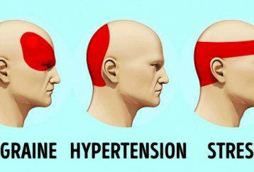 relieve-headache-just-5-minutes-no-matter-strong