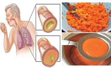remove-phlegm-lungs-coughs-amazing-old-remedy