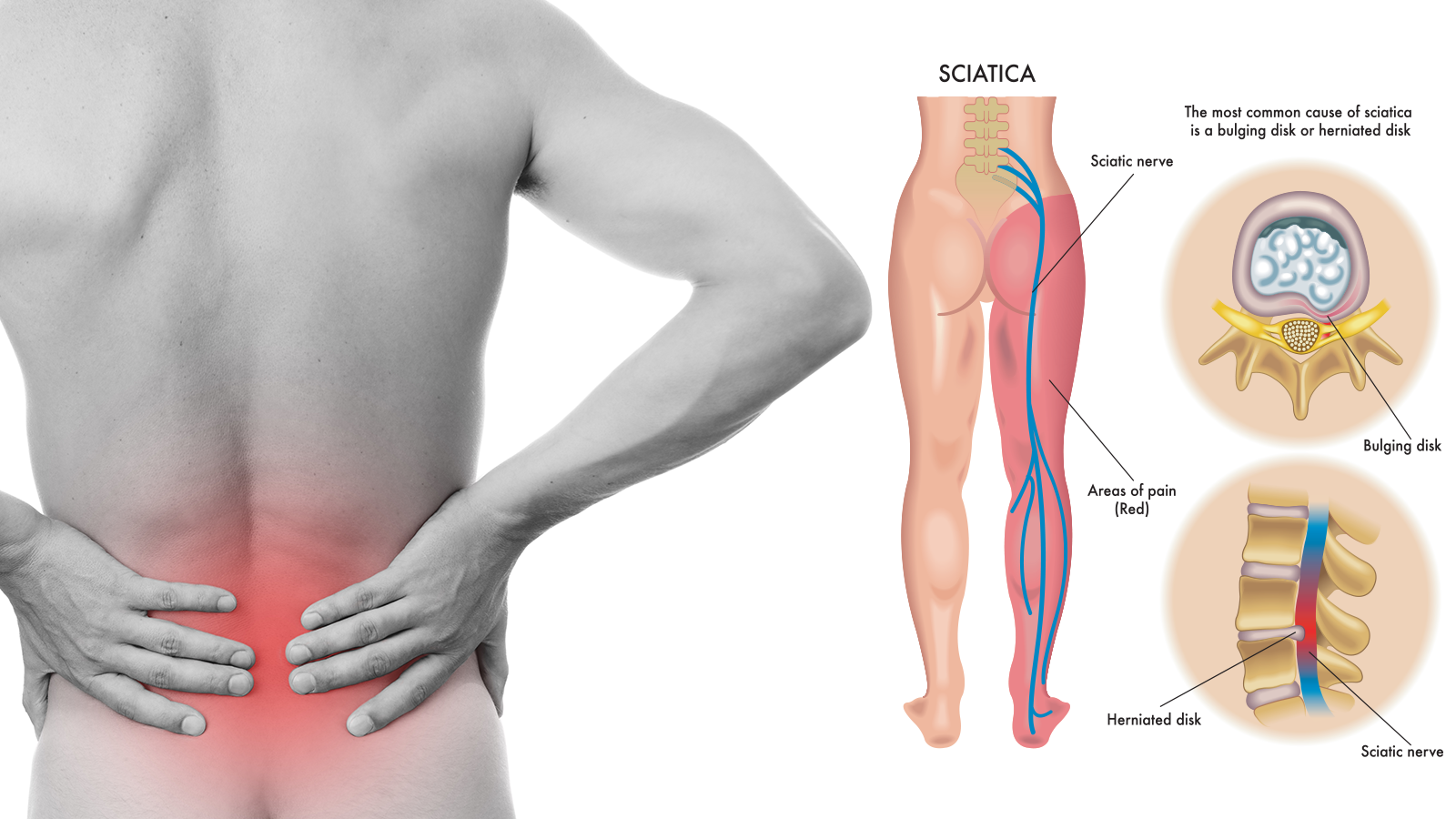 8 Sciatica Stretches That Prevent And Relieve Hip And