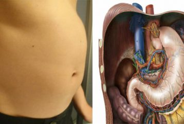 Surgical weight loss st. francis photo 7