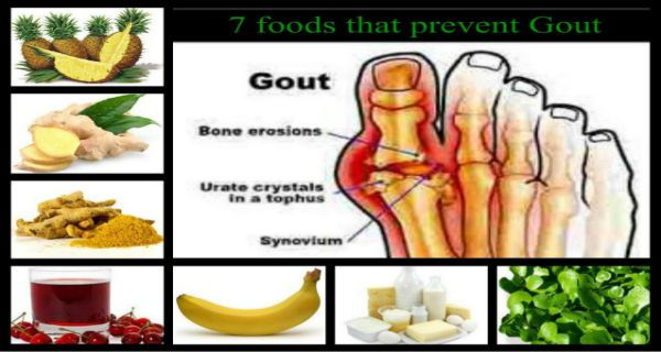 7 Foods That Prevent Gout - Health And Healthy Living