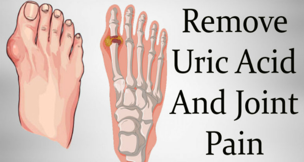 How To Remove Gout And Joint Pain Uric Acid And Crystals